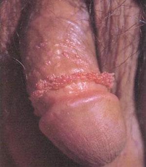 genital-warts-penis