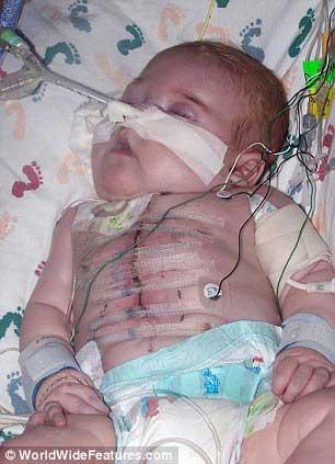 Gambar Ryan Marquiss selepas menjalani pembedahan jantung