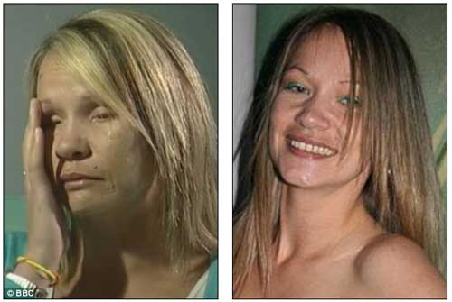 Photo Tina Nash Before and After