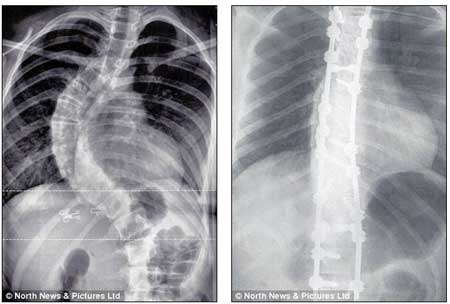 Gambar xray scoliosis teruk sebelum dan selepas bedah