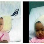 Gambar Budak Perempuan Tertusuk Gunting di Kepala